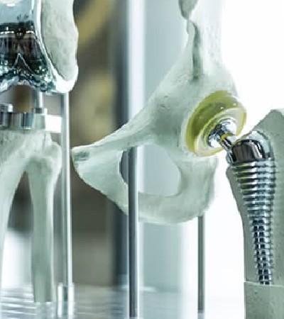 Impresión 3D en la medicina